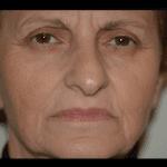atrofia mascella brescia