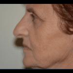 atrofia mandibola brescia