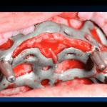 grave atrofia mascellare brescia