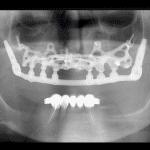 implantologia sottoperiostale brescia