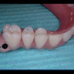 atrofia mandibolare bologna