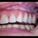 atrofia mandibola bologna