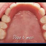 denti fissi bologna