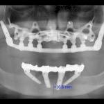 protesi dentaria bologna