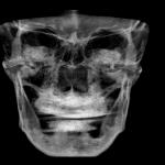 protesi dentaria completa bologna