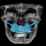 dentiera ferma bologna