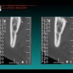 protesi dentaria macerata