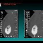 grave atrofia mascellare macerata