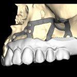 dentiera anziano alessandria