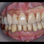 denti nuovi pica