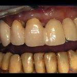 masticare dentiera