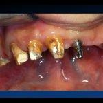 masticare dentiera bologna