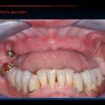 implantologia sottoperiostale bologna