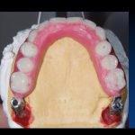 denti fissi genova