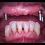 dentiera genova