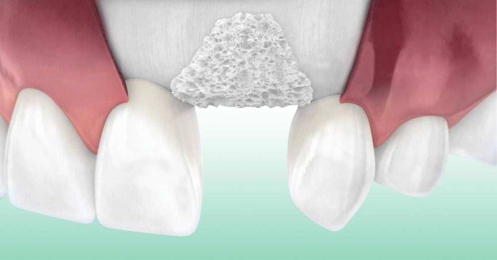 Innesto osseo dentale