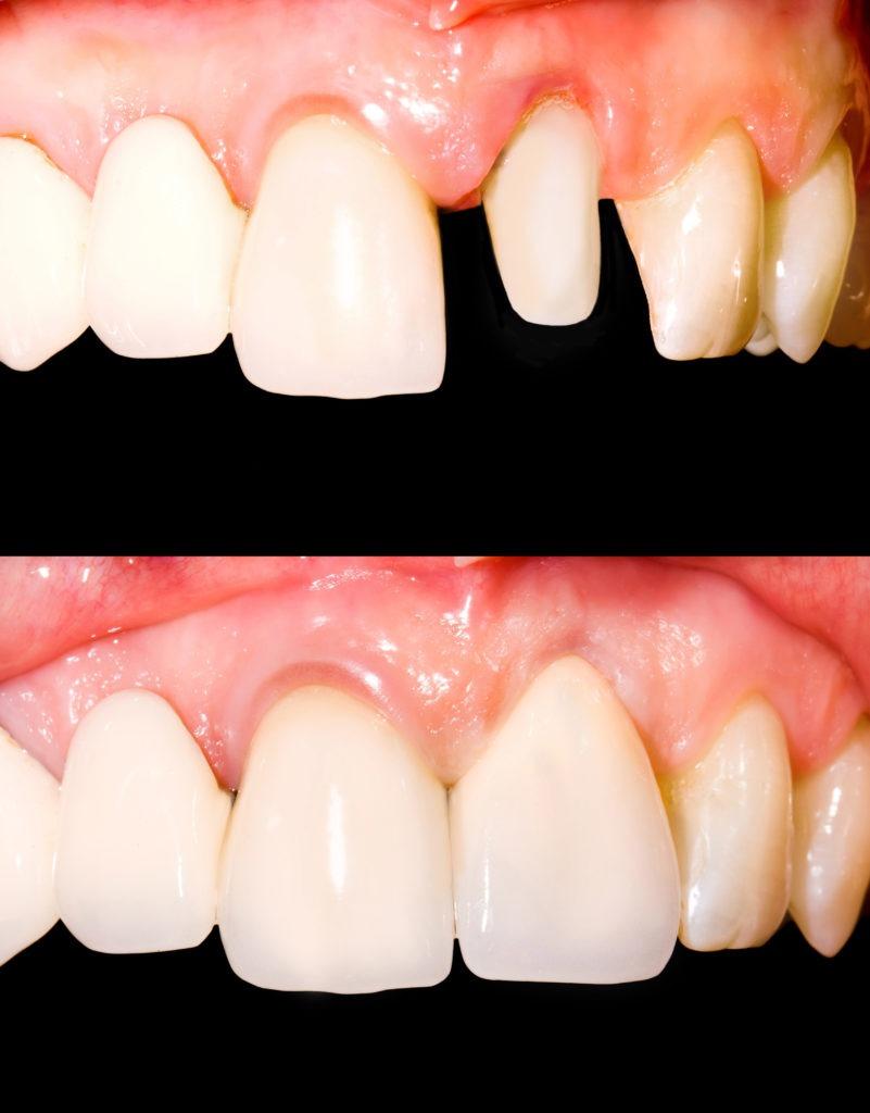 corona dentaria