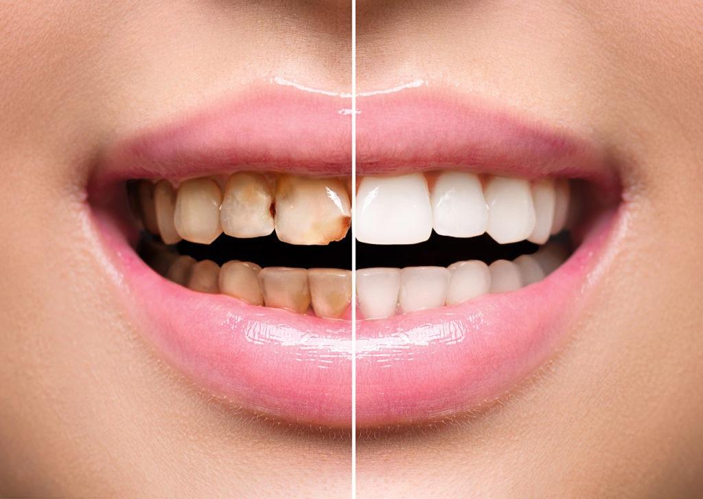 cosa sono faccette dentali