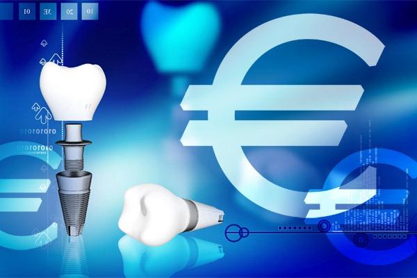 costo impianto dentale