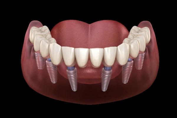 impianti dentali carico immediato all on six