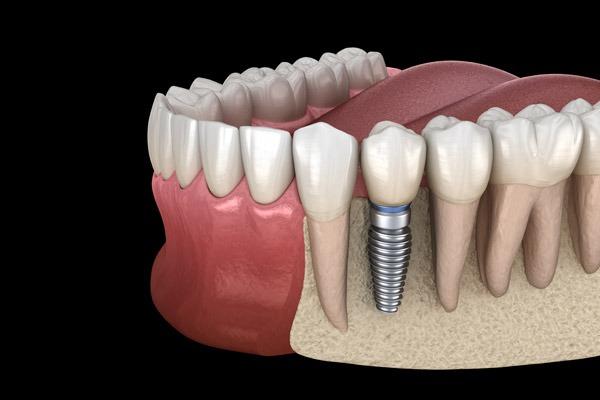 impianti dentali carico immediato