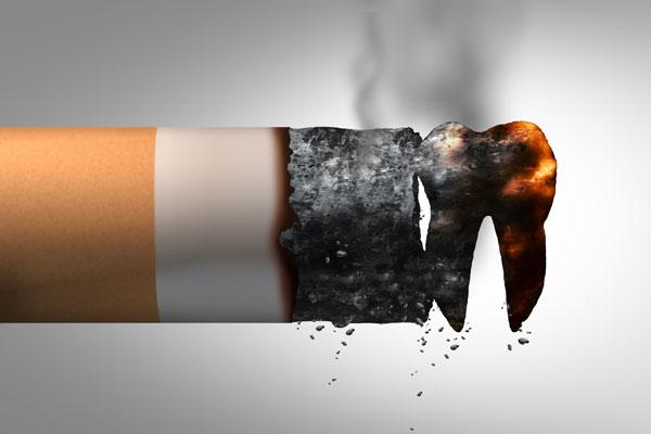 fumatori e durata impianti dentali