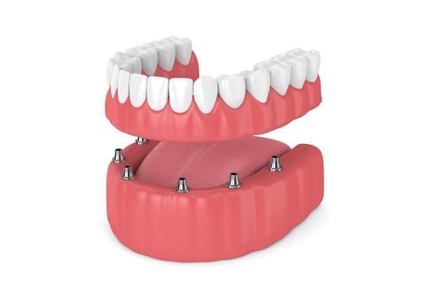 dentiera fissa bergamo