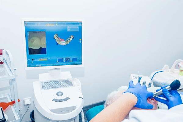 denti provvisori tecnologia