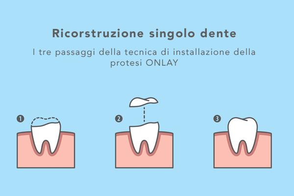 ricostruzione denti onlay
