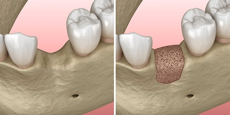 ricostruzione osso alveolare