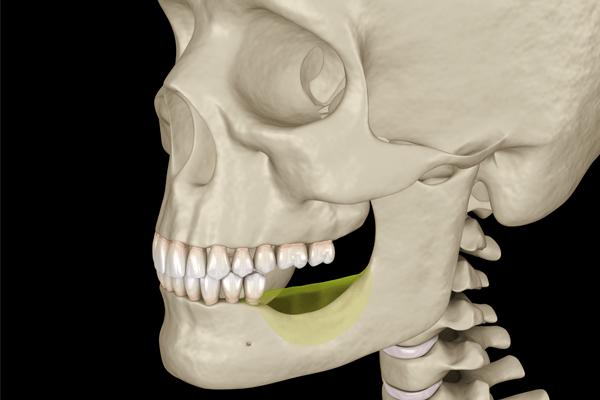 riassorbimento osso alveolare