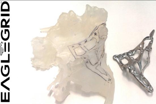 implantologia dentale per atrofia ossea