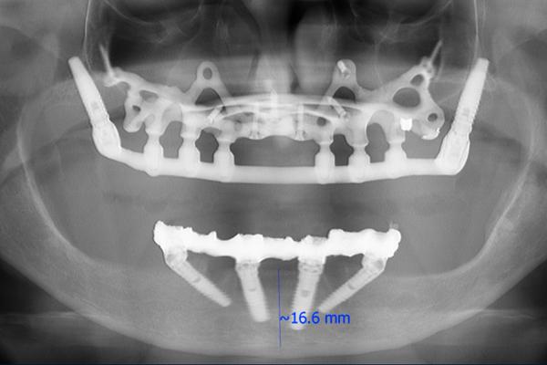 impianto dentale con poco eagle gridosso